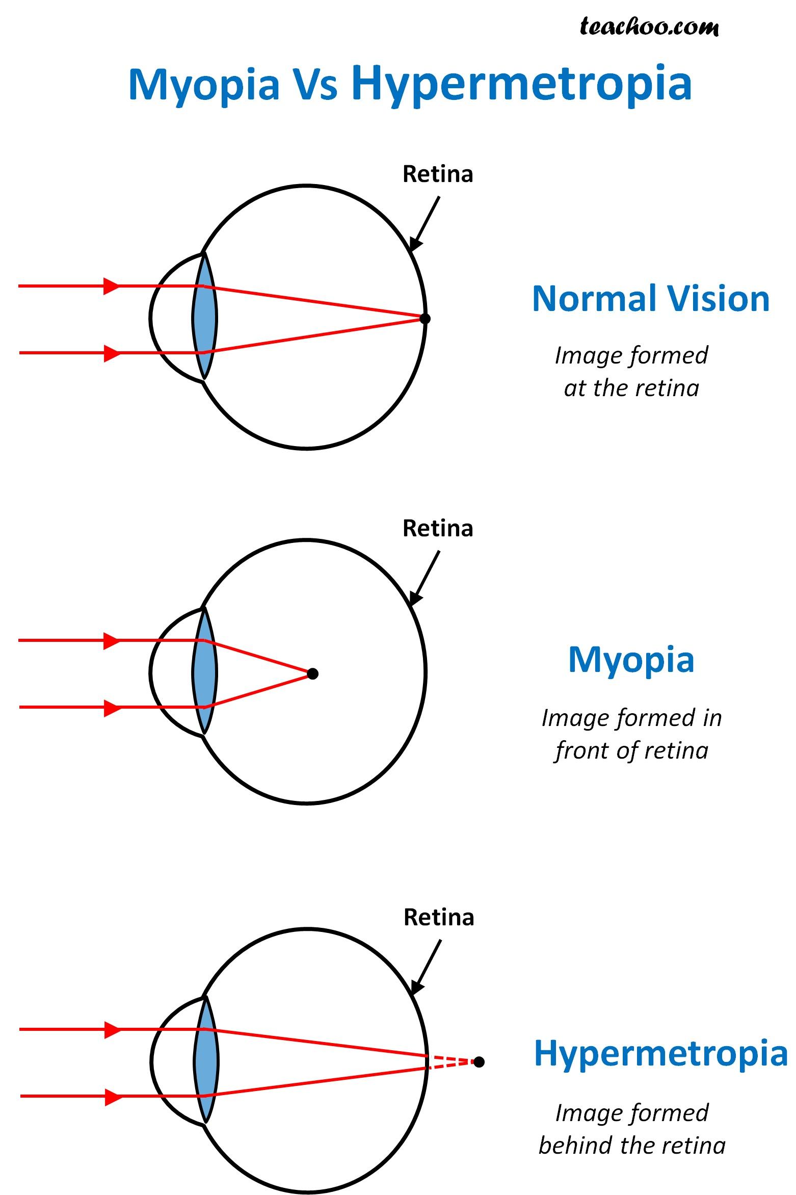 Difference between Myopia and Hypermetropia - Teachoo.jpg