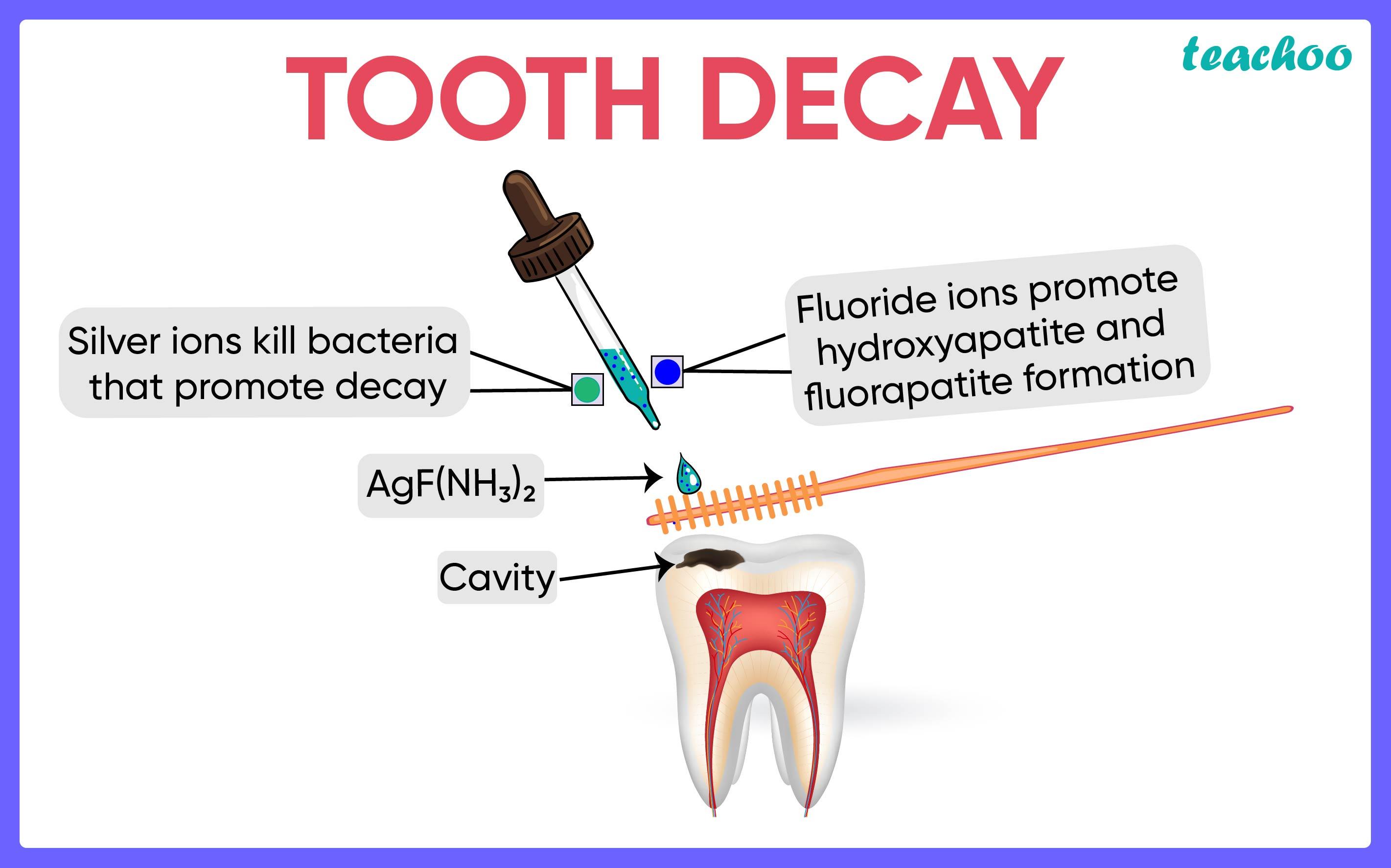 Tooth Decay-Teachoo.jpg