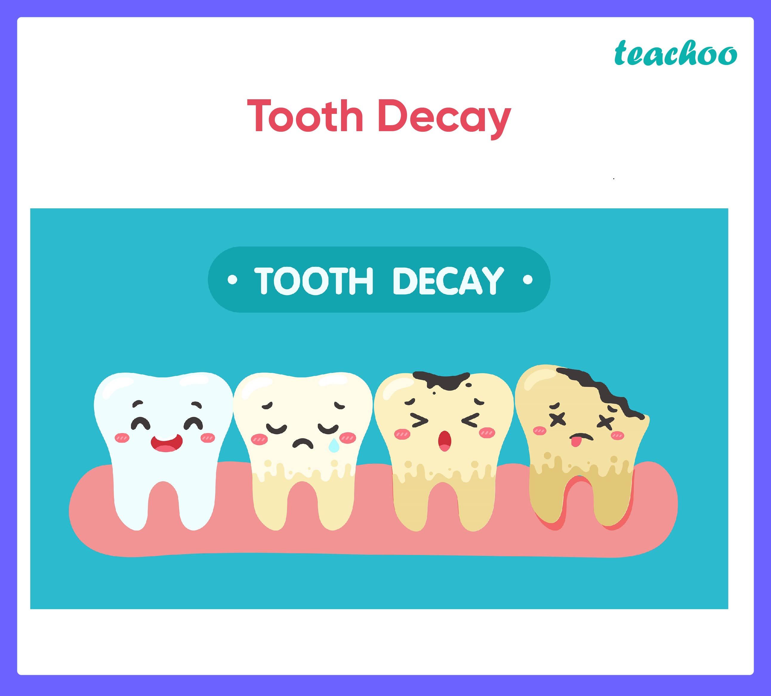 Tooth Decay - Teachoo.jpg