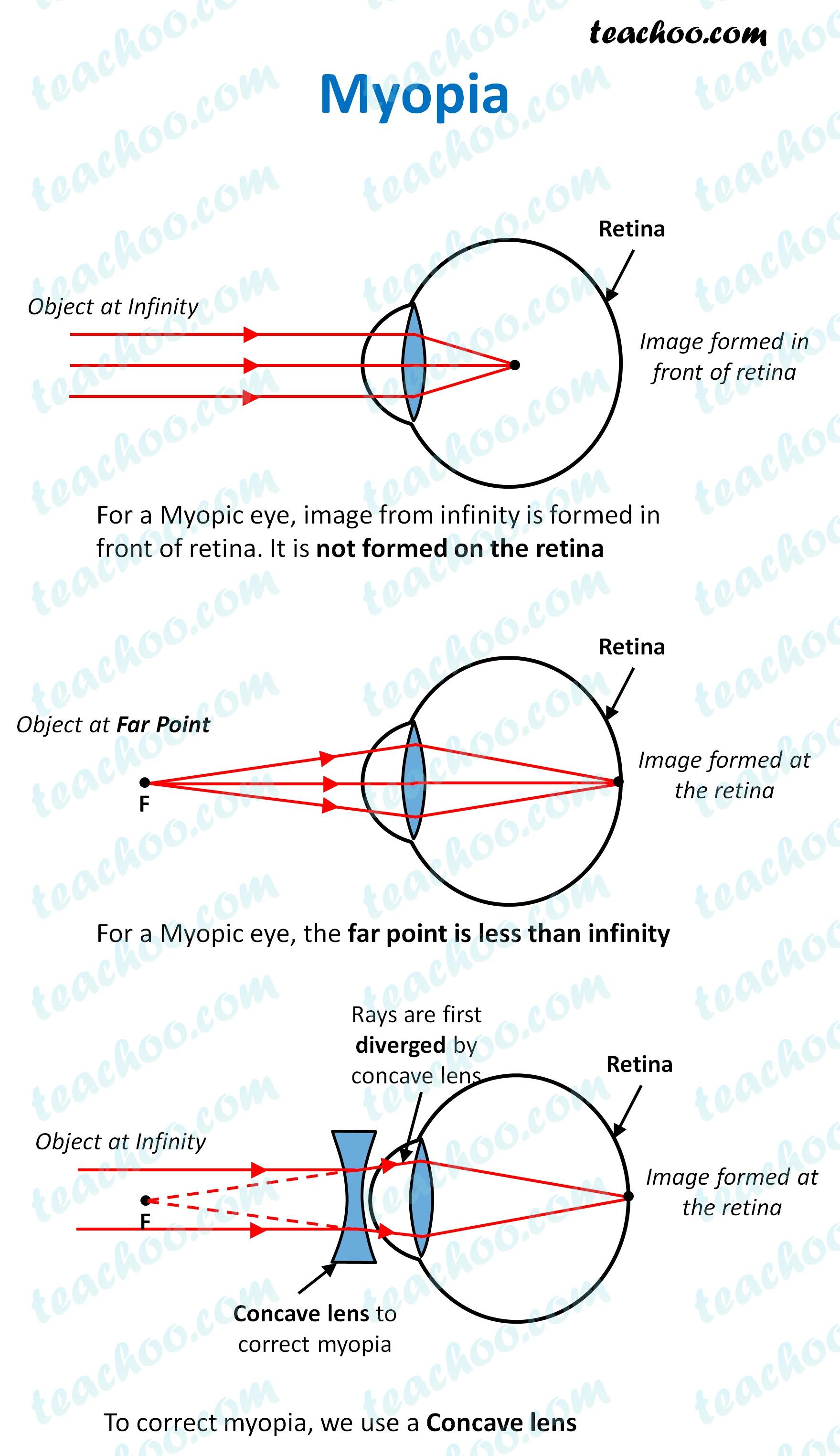 myopia---teachoo.jpg