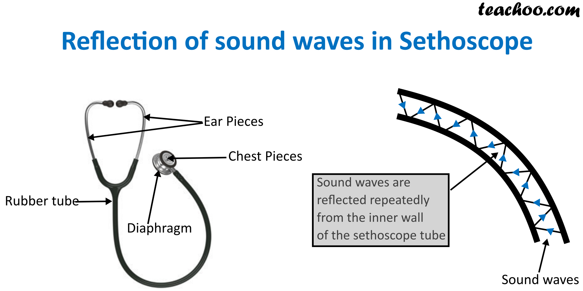 Reflection of sound waves in Sethoscope.png