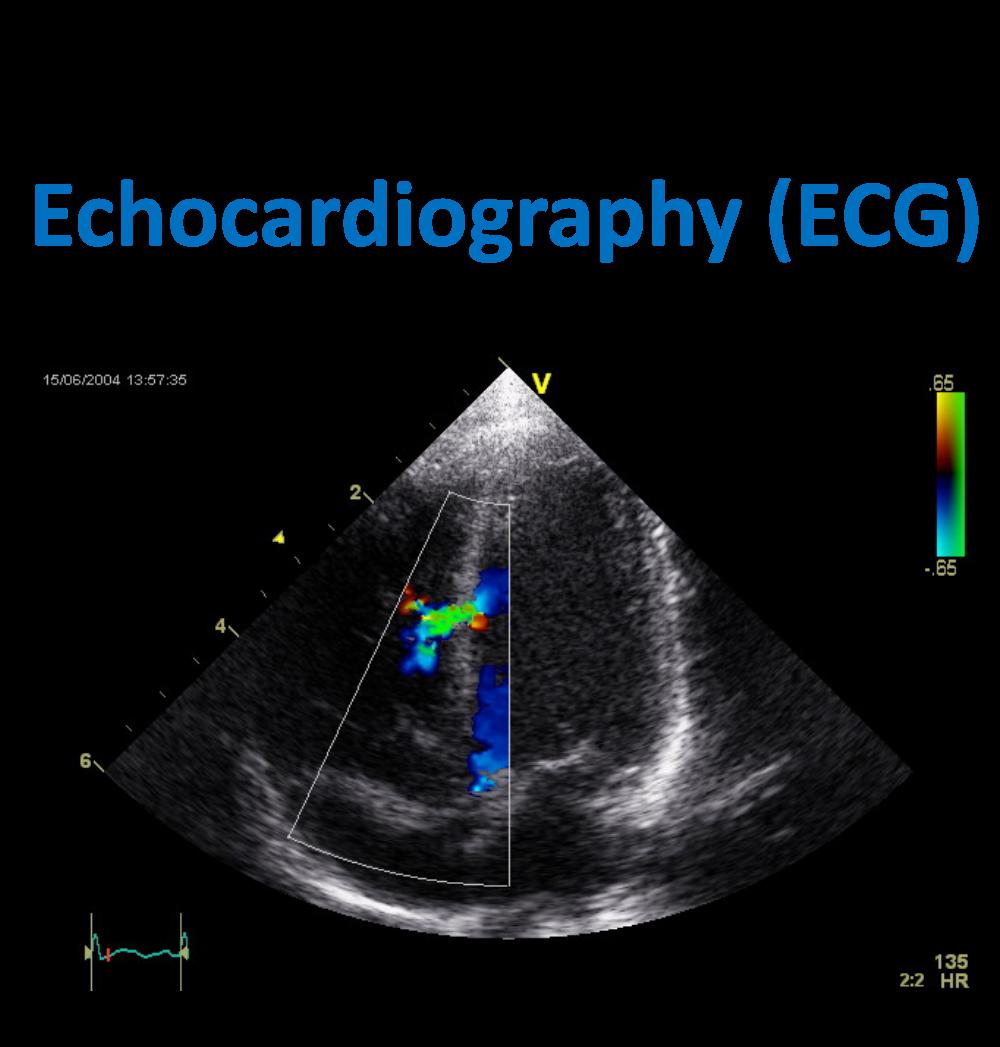 Echocardiography (ECG).png