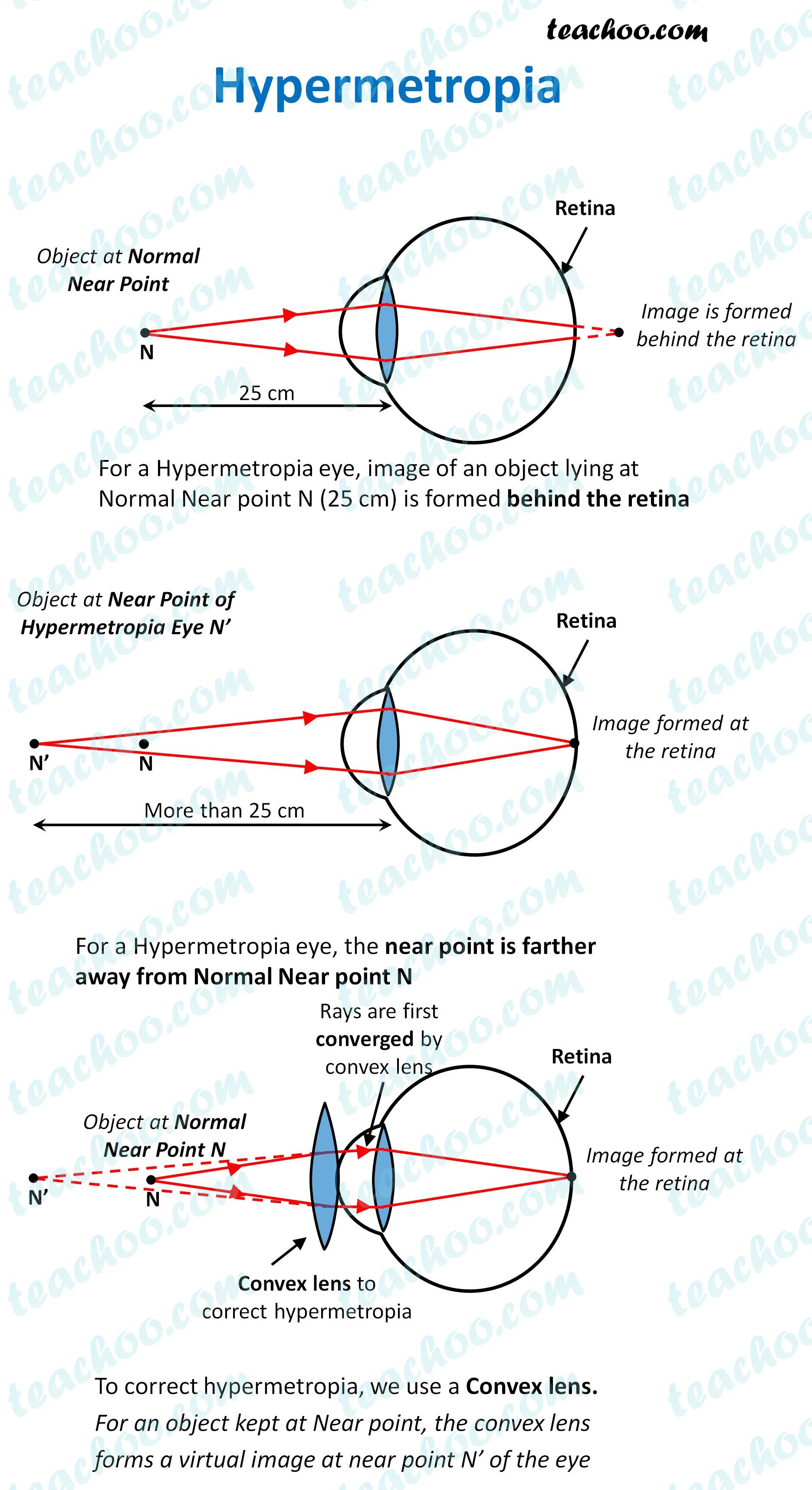hypermetropia---teachoo.jpg