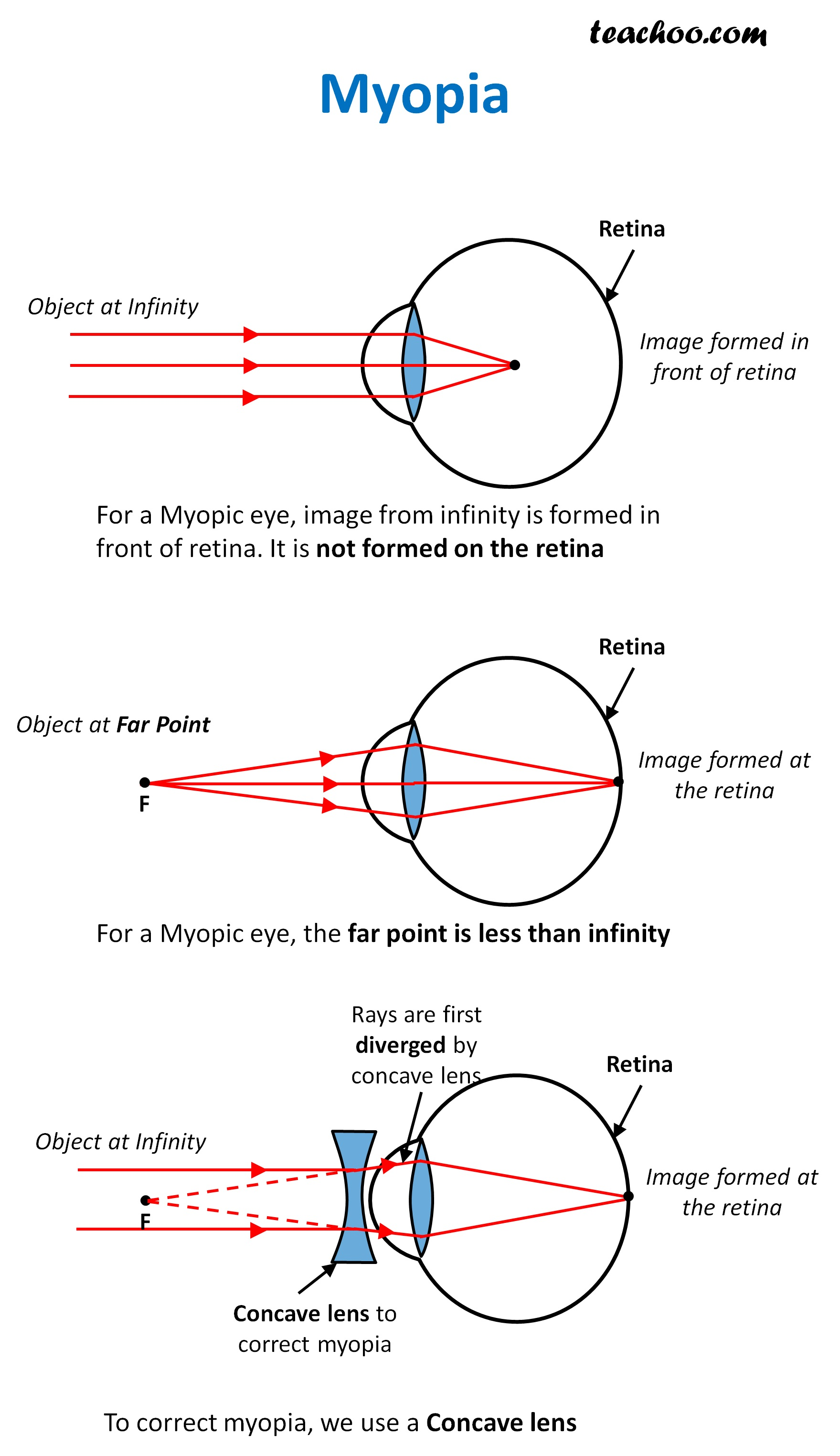 Myopia - Teachoo.jpg