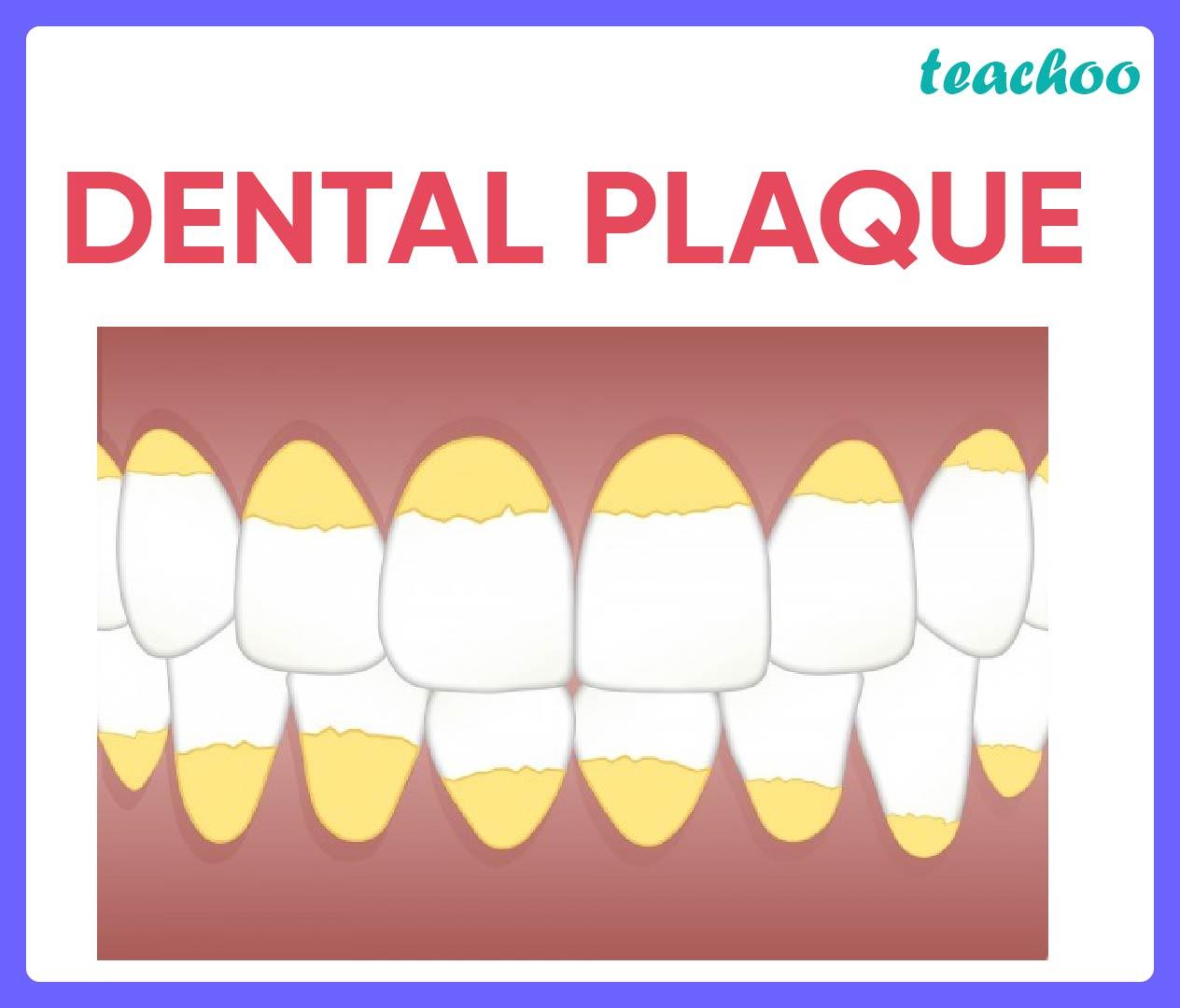 Dental-plaque-calculus-tartar - Teachoo.jpg